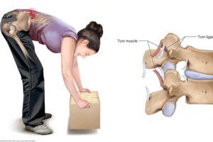 Stuburo skausmo priežastis – stuburo raiščių patempimas